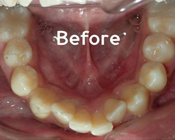 Inman Aligners Treatment Before