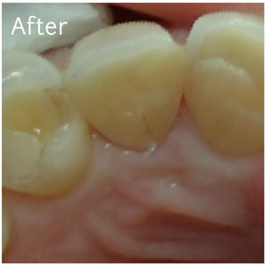 Resin Fillings After