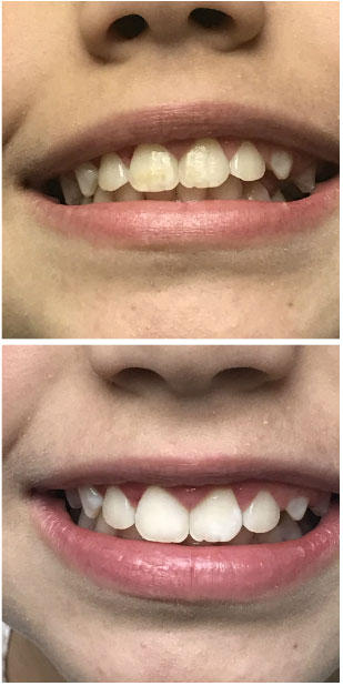 Spot Removal After