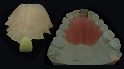 Temporary Partial Dentures